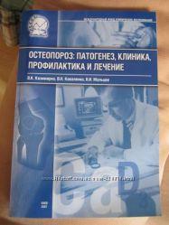Книга Остеопороз