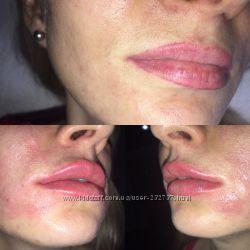 Любая форма губ возможна-увеличение обьема.