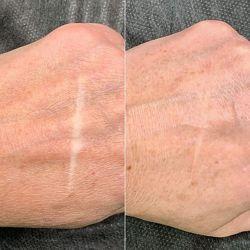 Модели на татуаж ареол, камуфлирование шрамов